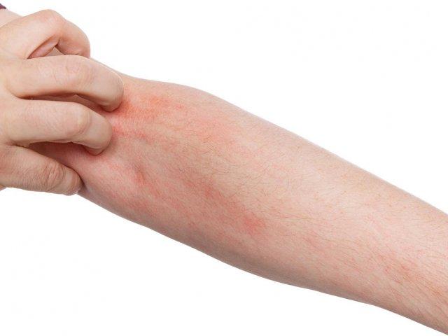 Krätze - Prävention und Ansteckungswege