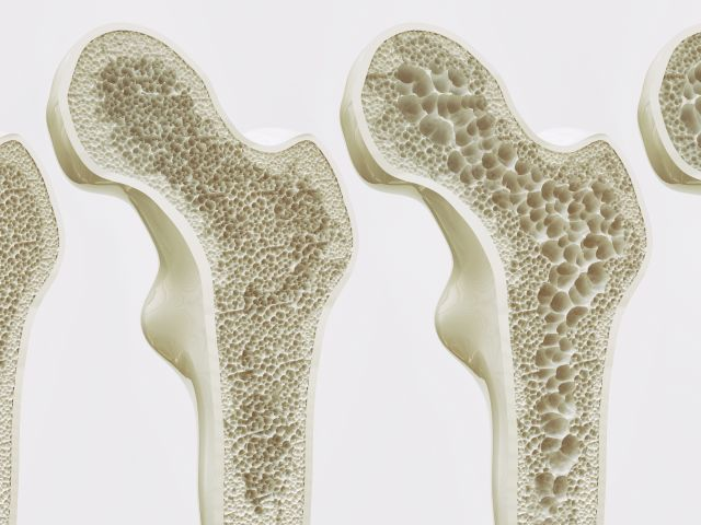 Apotheke Wassertrüdingen, Osteoporose